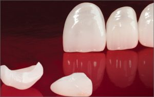 Vivaneers™ No-Prep Veneers | Valley View Dental
